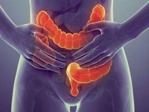 Колостома кишечника - показания к созданию, уход и восстановление