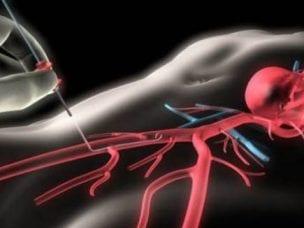 Коронарография – что это: как проводят исследование сердца и сосудов