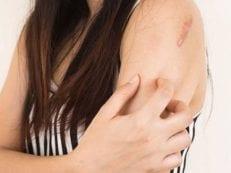 Красный плоский лишай — причины возникновения, симптомы, диагностика и эффективное лечение