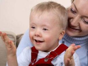 Кретинизм у детей и взрослых - причины и виды болезни