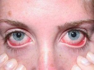 Лечение аллергического конъюнктивита у взрослых - обзор медикаментов