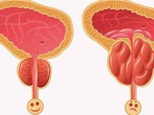 Лечение бактериального простатита гимнастикой, медикаментозными и народными средствами
