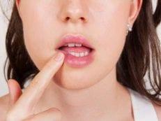 Лечение герпеса на губах за один день в домашних условиях