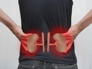 Лечение гидронефроза - медикаментозная и народная медицина, диета