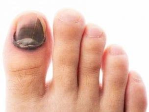 Лечение грибка ногтей в домашних условиях эффективными средствами