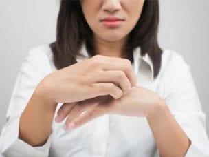 Лечение лишая в домашних условиях препаратами и народными средствами