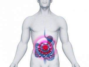 Лечение полипов в кишечнике народными средствами - лучшие рецепты