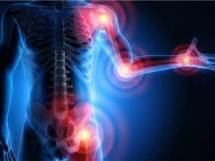 Лечение ревматизма при помощи медикаментов и народной медицины
