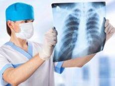 Лечение воспаления легких антибиотиками, отхаркивающими препаратами и рецептами народной медицины