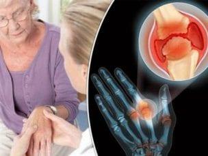 Препараты и народные средства для лечения артрита