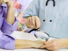 Мазь от грибка на коже тела — эффективные народные и медикаментозные средства для лечения заболевания