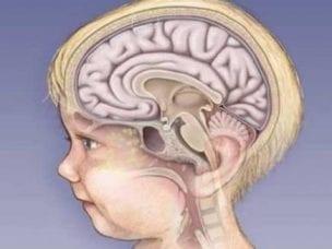 Менингит у новорожденных - причины, симптомы и последствия