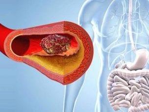 Мезентериальный тромбоз - симптомы и лечение