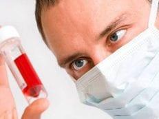 Миеломная болезнь — причины, симптомы, диагностика, лечение и прогноз заболевания