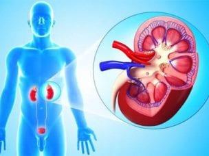 Микролиты в почках - причины и симптомы, диагностика и методы лечения
