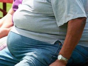 Морбидное ожирение - степени и причины заболевания, методы лечения и диета