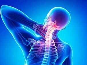Неврологические осложнения остеохондроза позвоночника