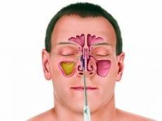 Одонтогенный гайморит: как лечить воспаление гайморовой пазухи