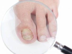 Онихогрифоз ногтей - описание, причины и симптомы заболевания, диагностика, методы лечения и профилактика
