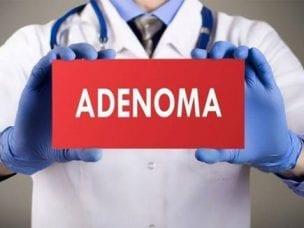Операция при аденоме предстательной железы - показания и методы проведения