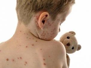 Осложнения после ветрянки у детей - развитие пневмонии, энцефалита и кожных реакций