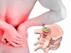 Остеохондроз поясничного отдела позвоночника — лечение заболевания