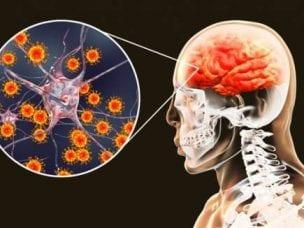 Острый менингит у детей и взрослых - симптомы и лечение
