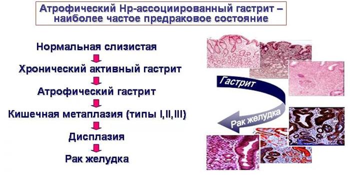 От хронического гастрита к раку