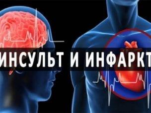 Отличие инфаркта от инсульта - причины возникновения и схожие симптомы, диагностика, методы лечения