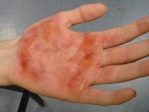 Ожог кипятком - степени, первая помощь и методы лечения