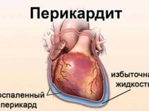 Перикардит у взрослых и детей - симптомы и лечение