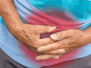 Перитонит - причины, симптомы и лечение
