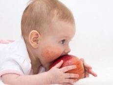 Пищевая аллергия у детей: как проявляется, чем лечить