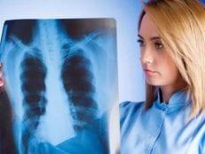 Пневмония без температуры — первые признаки воспаления, медикаментозная и народная терапия, профилактика