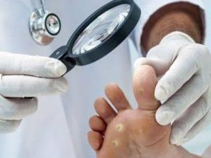 Подошвенные бородавки - причины возникновения, симптомы и лечение