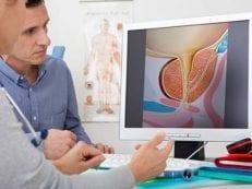 Показания к операции при аденоме простаты — абсолютные и относительные симптомы
