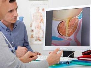 Показания к операции при аденоме простаты и способы хирургического лечения