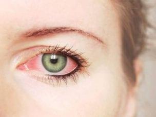 Покраснение глаз - основные причины, диагностика и методы лечения