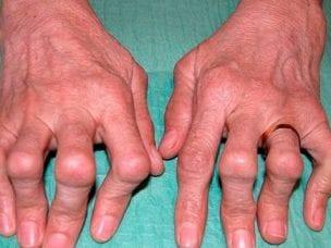 Полиартрит – симптомы и проявления заболевания, диагностика, лечение