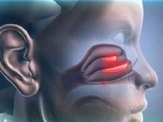 Полипозный гайморит — причины, виды, признаки и как лечить