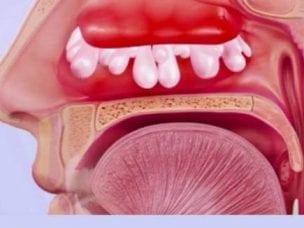 Полипозный синусит острый и хронический - симптомы и лечение
