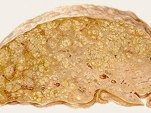 Портальный цирроз печени - причины, симптомы, диагностика и методы лечения