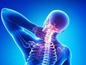 Последствия шейного остеохондроза - какие неврологические синдромы взывает заболевание