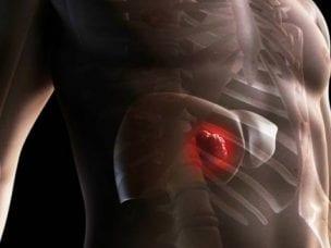 Причины цирроза печени у мужчин - симптомы, проявления, диагностика и методы лечения