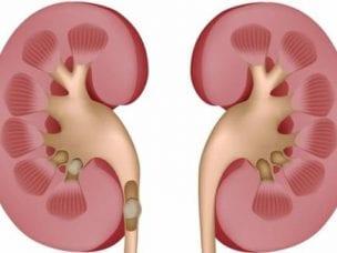 Причины гидронефроза почек - симптомы, диагностика и методы лечения