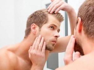 Причины раннего облысения у мужчин - внешние и внутренние факторы
