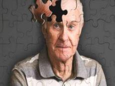 Признаки болезни Альцгеймера — первые проявления, симптомы и диагностические тесты