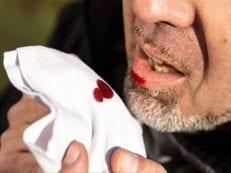 Признаки легочного кровотечения — клиническая картина, методы лечения и осложнения