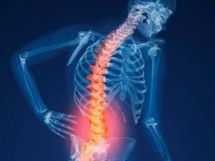 Признаки остеопороза у мужчин и женщин - проявления и методы лечения