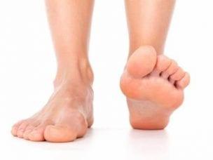 Признаки плоскостопия у взрослых - симптомы на разных стадиях заболевания